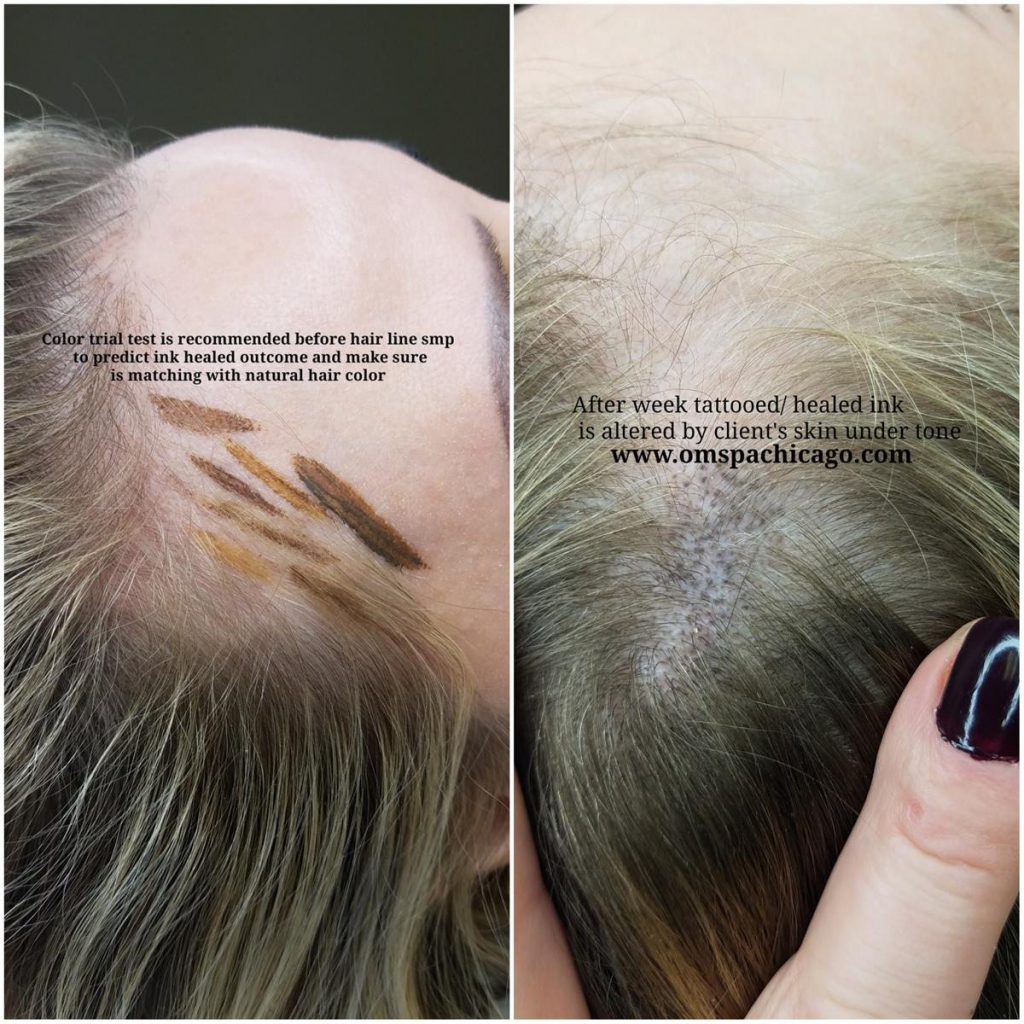 women scalp micropigmentation Chicago